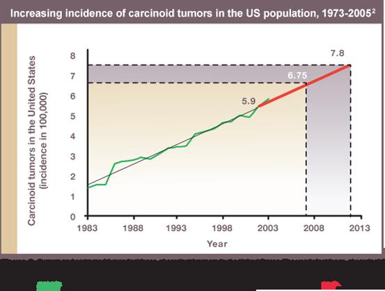 increasing-incidence-carcinoid-tumors